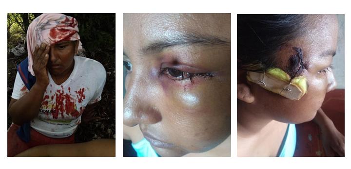 Violentas agresiones por parte de la fuerza pública dejan dospersonas gravemente heridas en los municipios de Cartagena del Chairá y San José de Fragua.